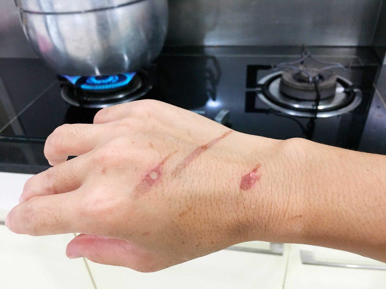 como curar quemadura en casa